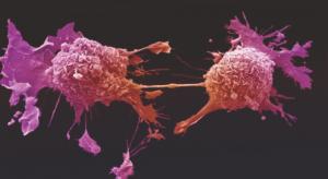 Inteligencia artificial ayuda a detectar cáncer